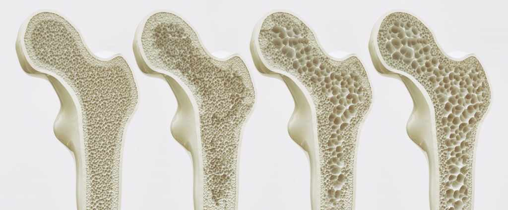 Tips to Prevent the Bones from Osteoporosis