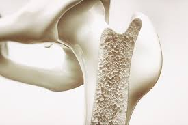 Bones from Osteoporosis